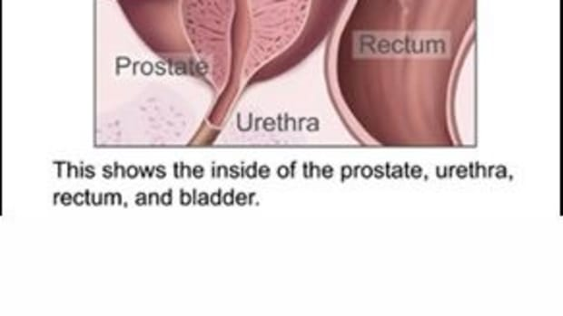 dog-prostate-gland