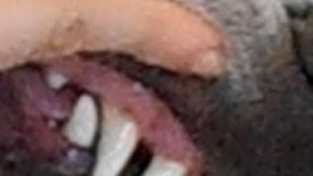 normal gum color