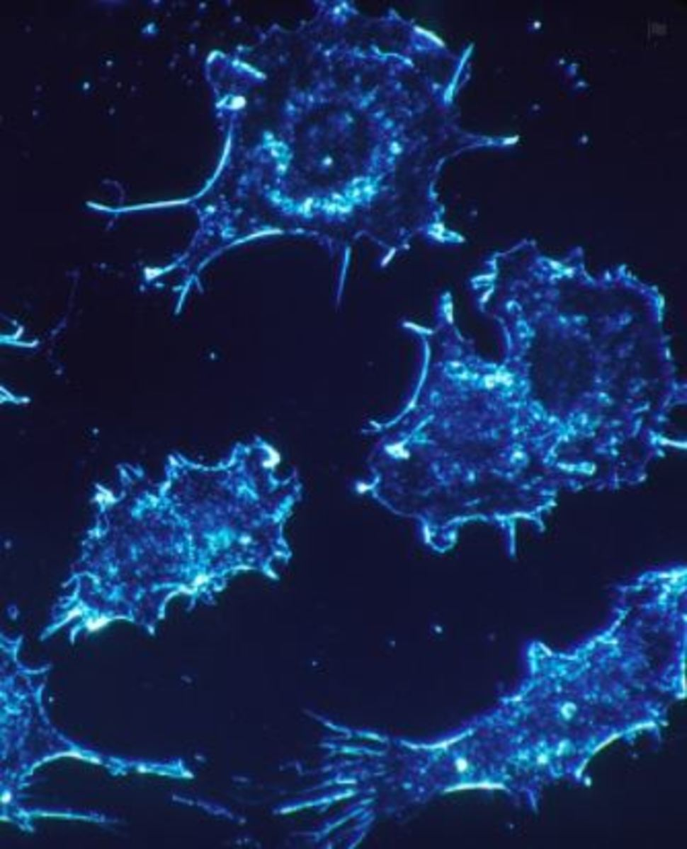 Picture of cancer cells