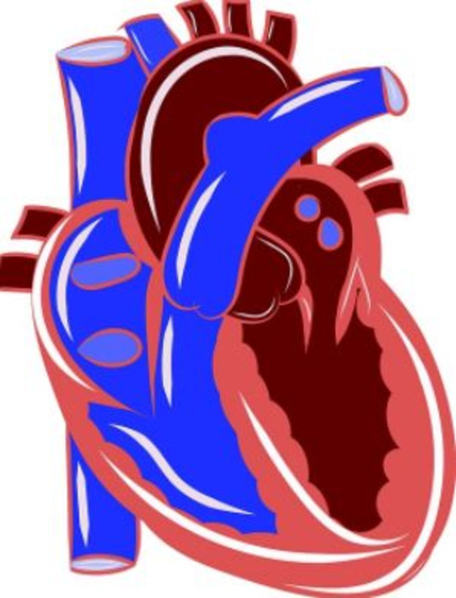 Clogged arteries leading to heart disease is mostly seen in humans.