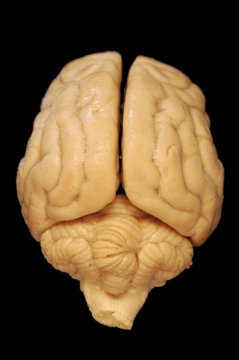 brain-114065_640