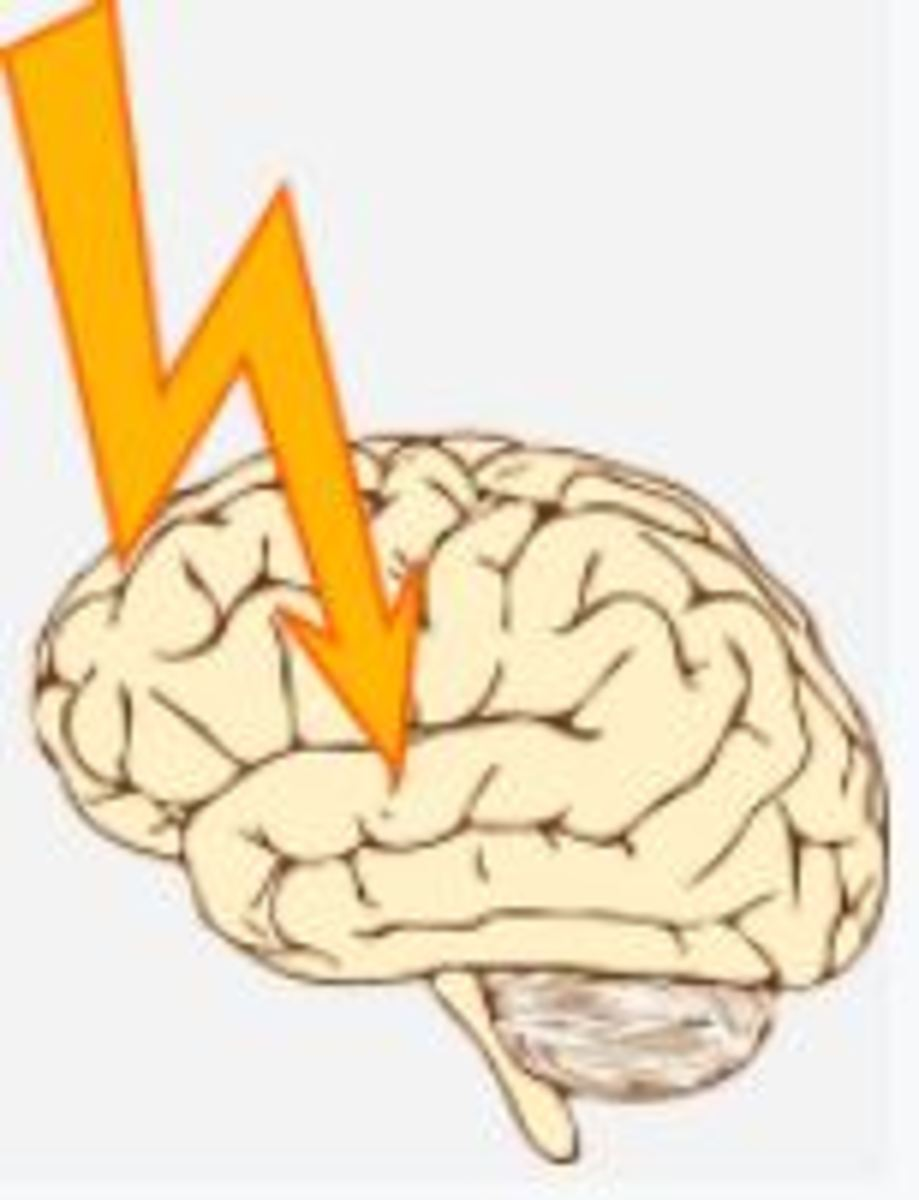 brain seizures