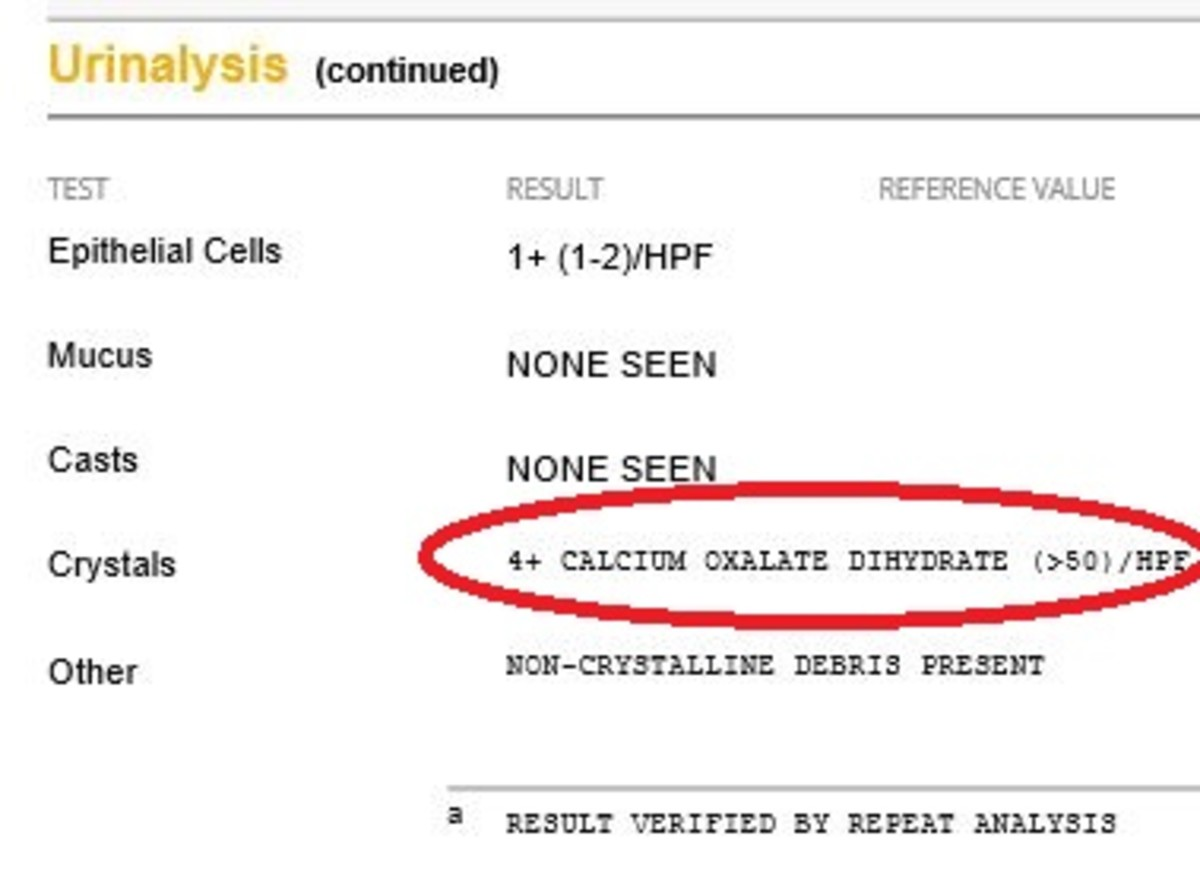 Calcium oxalate in a dog's urine