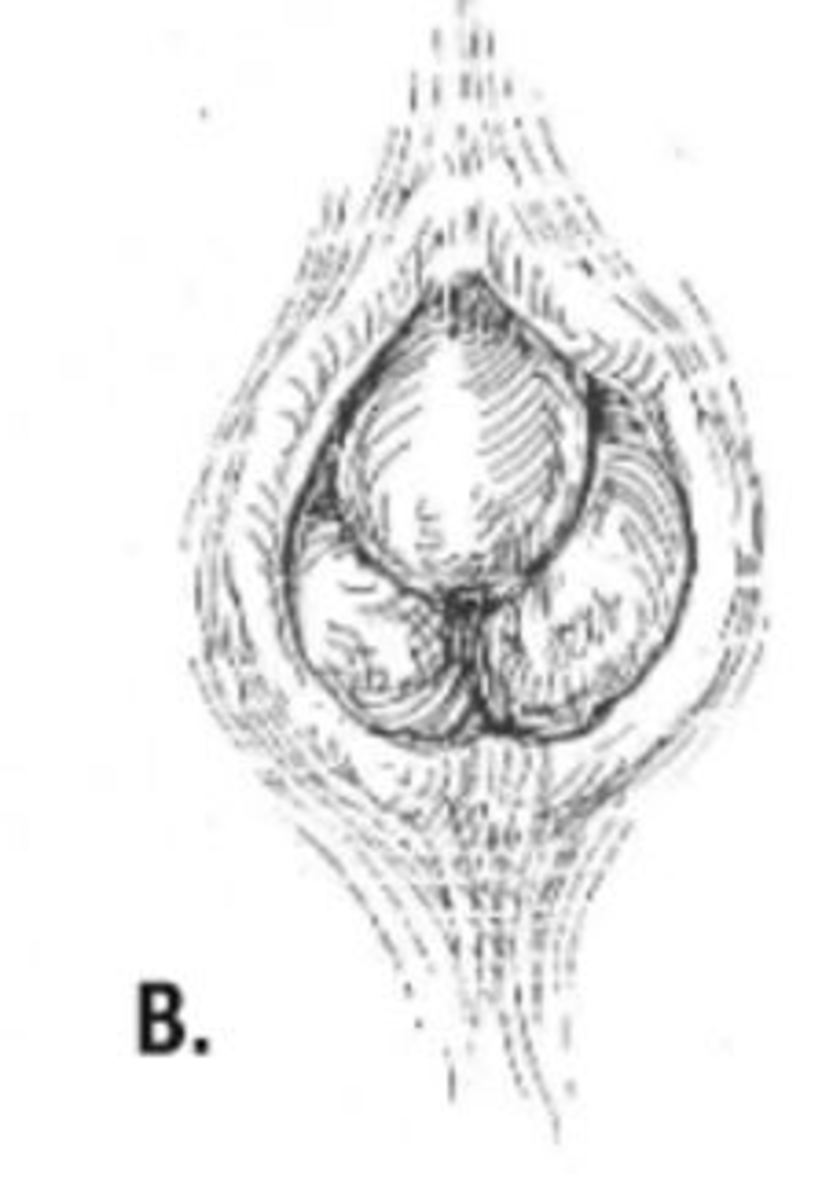Full thickness external rectal prolapse.