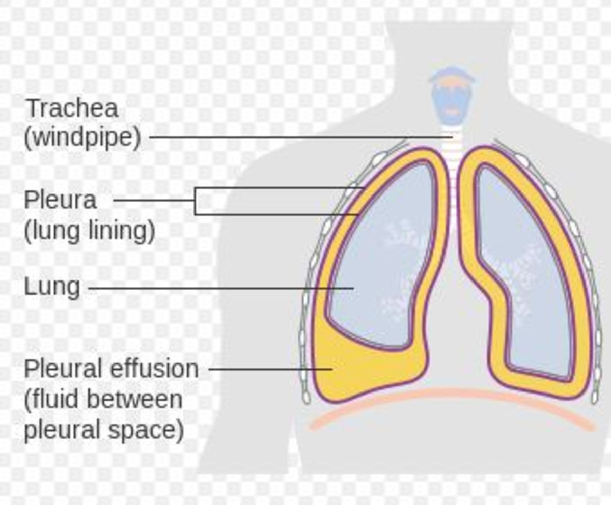 Build up of fluid in the lining of the lungs (pleural effusion) Cancer Research UK / Wikimedia