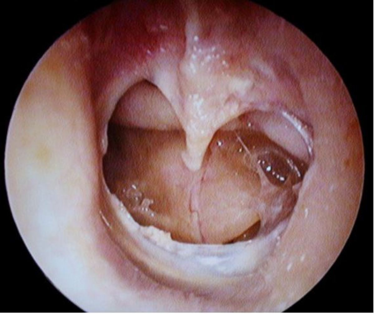 perforated eardrum