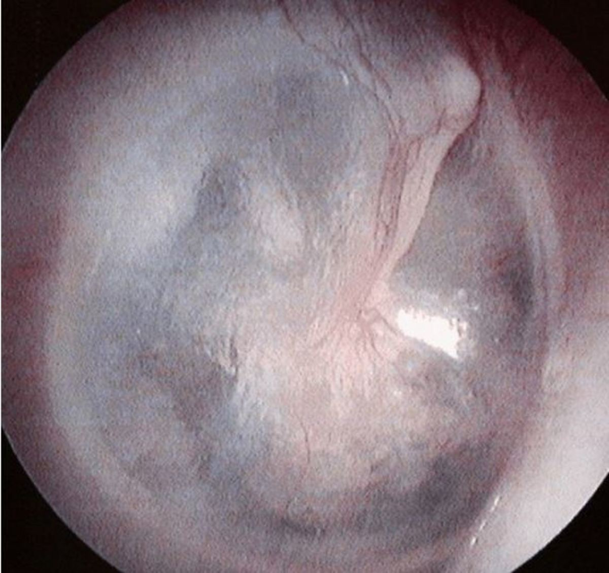 ear drum non perforated