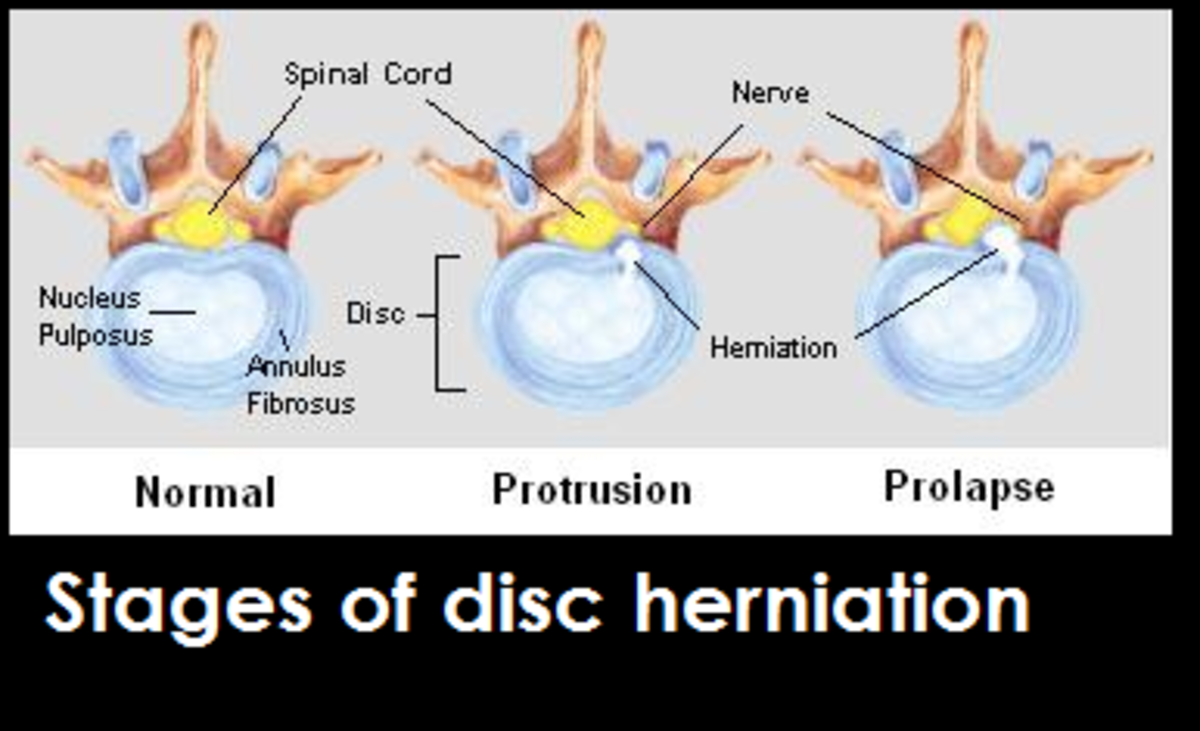dog herniated disc