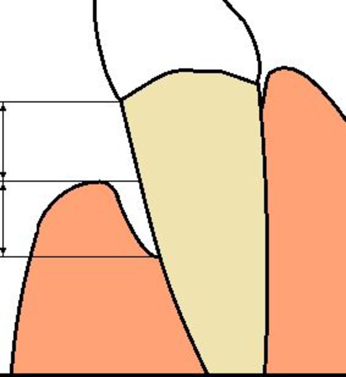 tooth-loss-dog